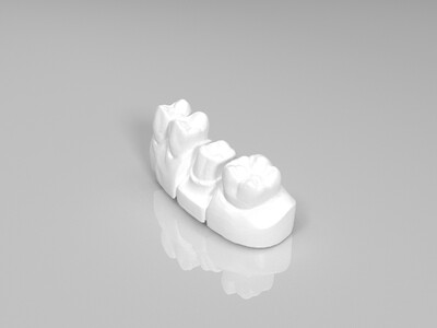 牙齿-3d打印模型