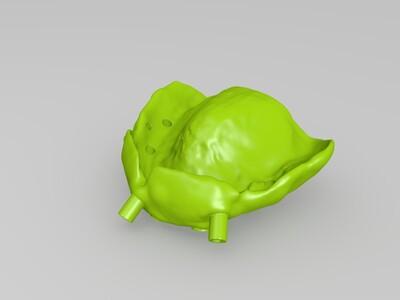 种植导板-3d打印模型