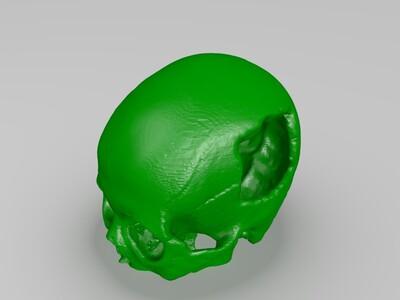 男性额叶颅骨二期手术*高精模-3d打印模型