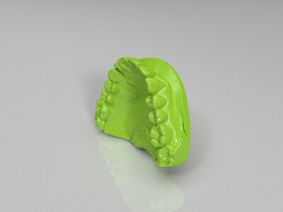 牙齿模型-3d打印模型